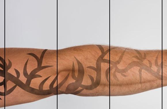 Ar Jūs norite pašalinti tatuiruotę?